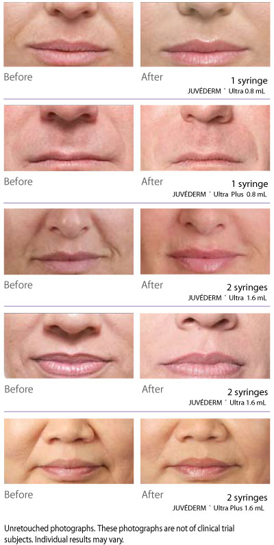 Dermal Fillers Juvederm Ultra Plus XV & Voluma XC - Pearland Med Spa